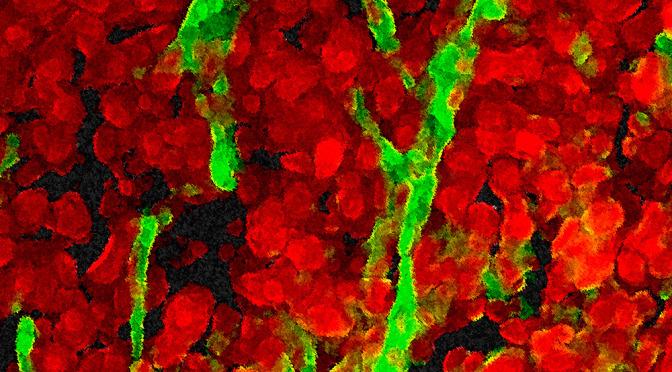 03_Imagen-Proyecto-Angiogenesis